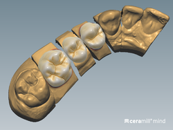 Ceramill Mindforms by Knut Miller (Expansion of the tooth